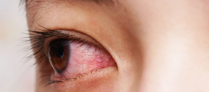 eye with conjunctivitis
