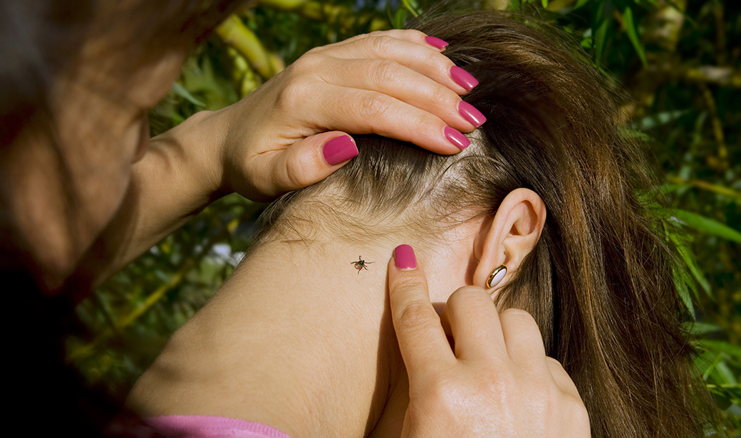 young woman with tick on her neck
