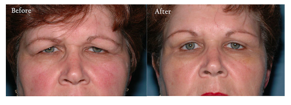 Eyelid Surgery - MU Health Care