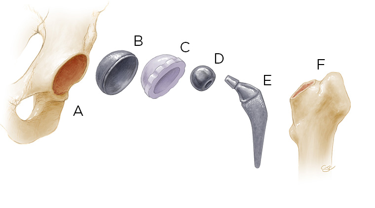 Photo of hip parts and materials
