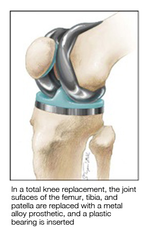 Types Of Knee Surgery Mu Health Care