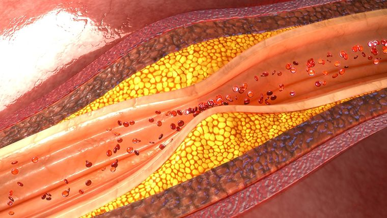 coronary artery plaque 3d illustration