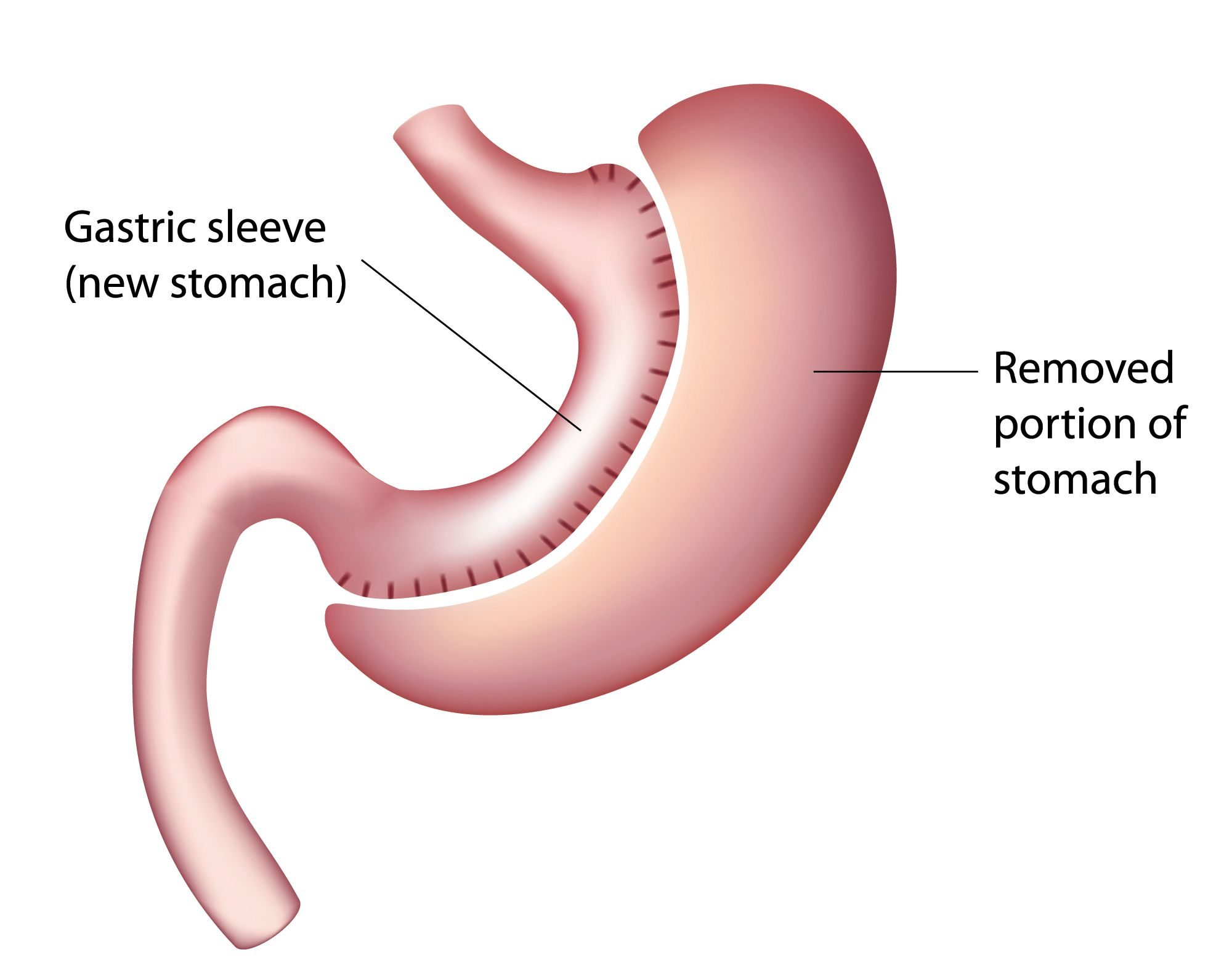 diagram of gastric sleeve surgery
