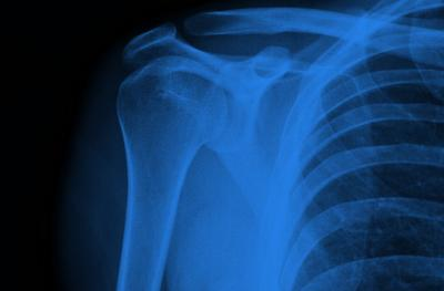 x-ray of collarbone