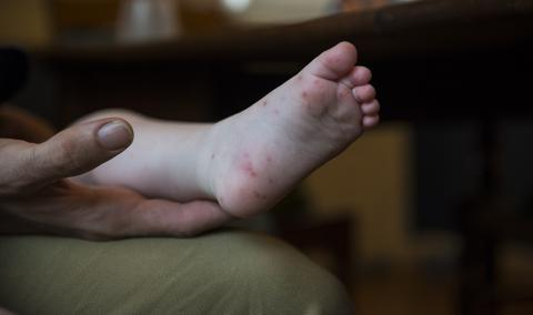 foot with rash
